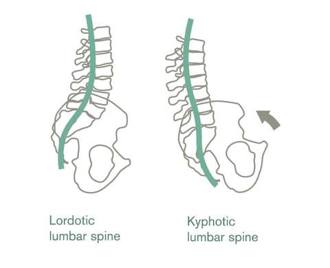 An illustration showing how the pelvis affects the lumbar spine's shape.